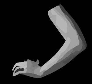 DEPTO.FISIOTERAPIA: Epicondilitis lateral